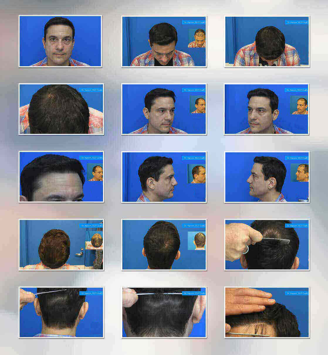 At Solace we analyze your present condition of baldness and providing the best consultation for hair restoration