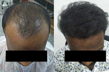 solace hair transplant clinic