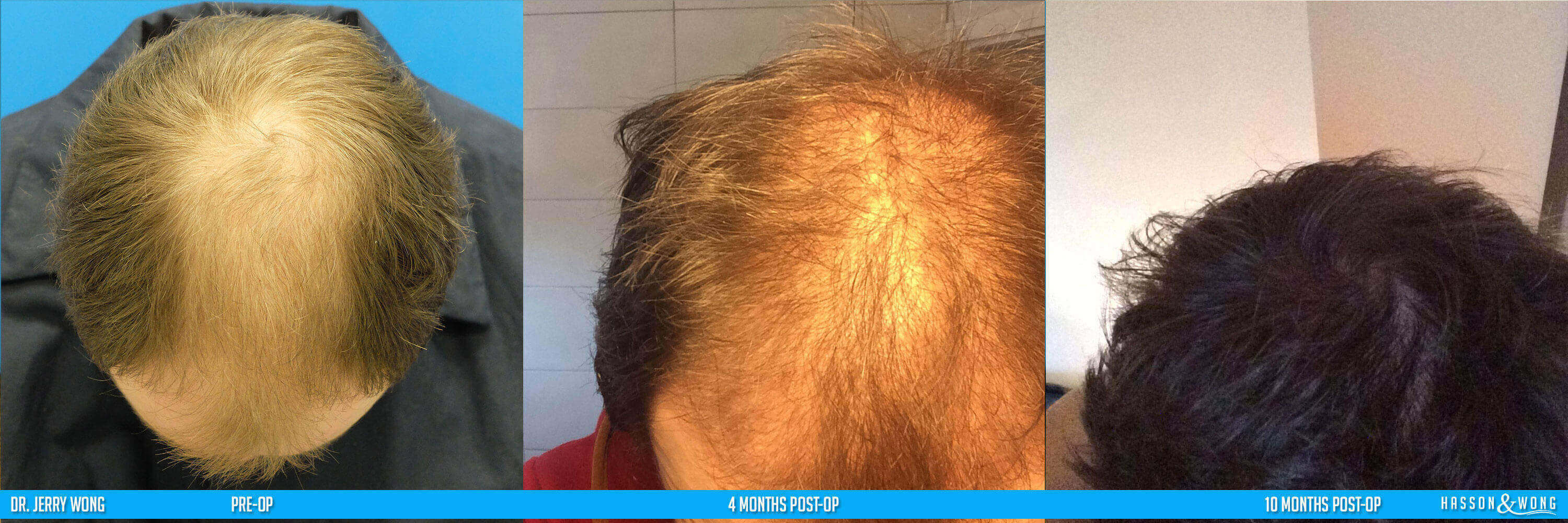 hair transplant patient top view 10 months after surgery