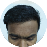 Solace Hair Transplant Clinic Results