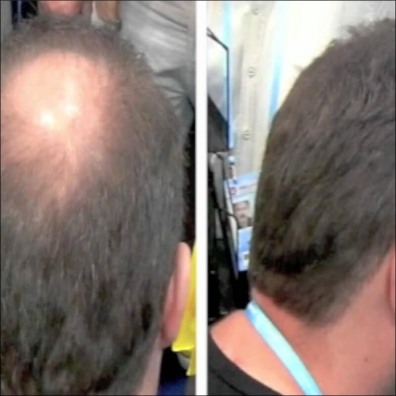 Solace located at Pune have skilled and experienced hair transplant surgeon