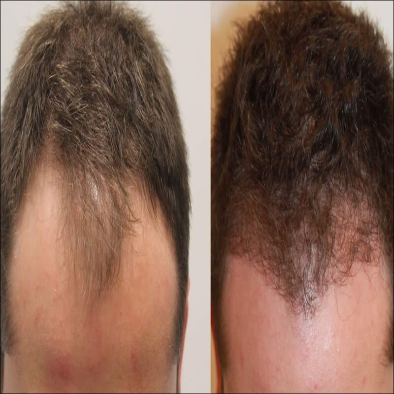 Plant hair cells & grow hair with instant hair transplant