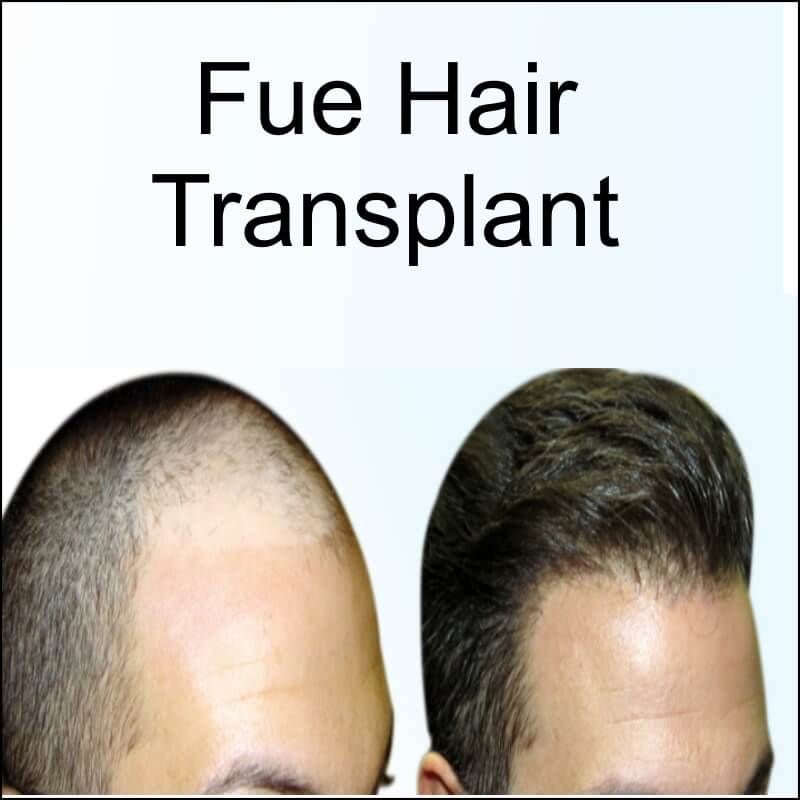 Fue hair transplant is ideal for the treatment of incipient and advanced hair loss